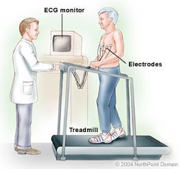 NI - Echocardiographic Stress Test- from CP 2500